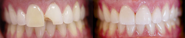 Porcelain Veneers Before and After - Jackson Smiles Family Dentistry