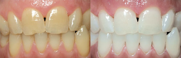 Professional Teeth Whitening - Jackson TN