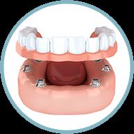 Dentures graphic
