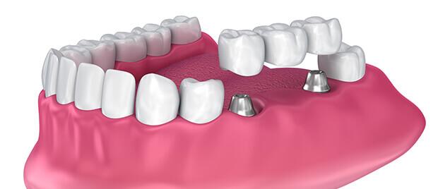 dental bridge illustration