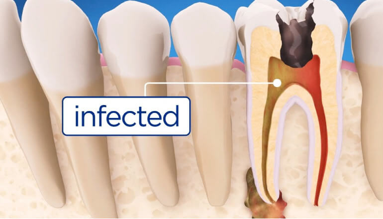 model showing infected tooth needing root canal therapy