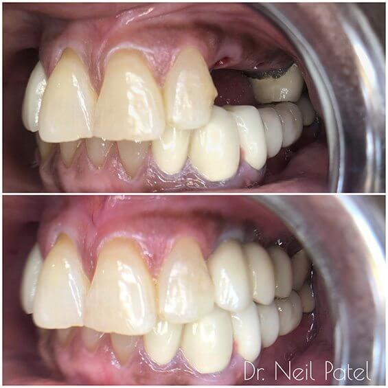 Before and after photo of tooth replacements