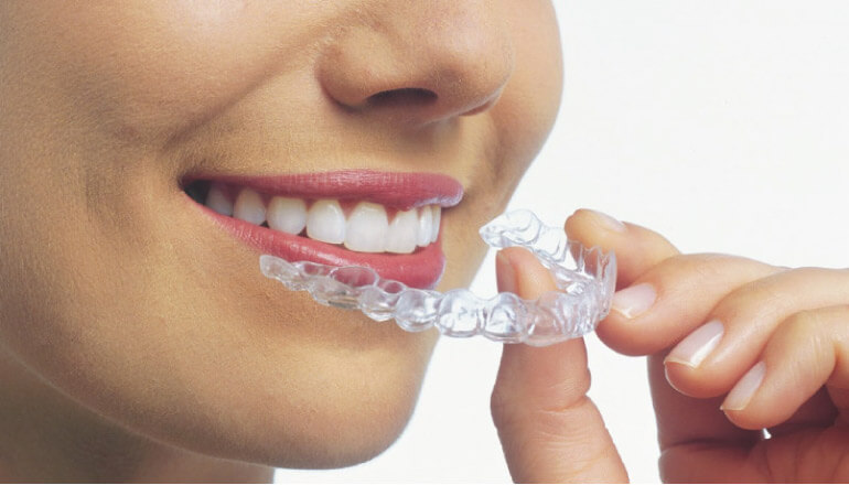 woman undergoing clear aligner therapy