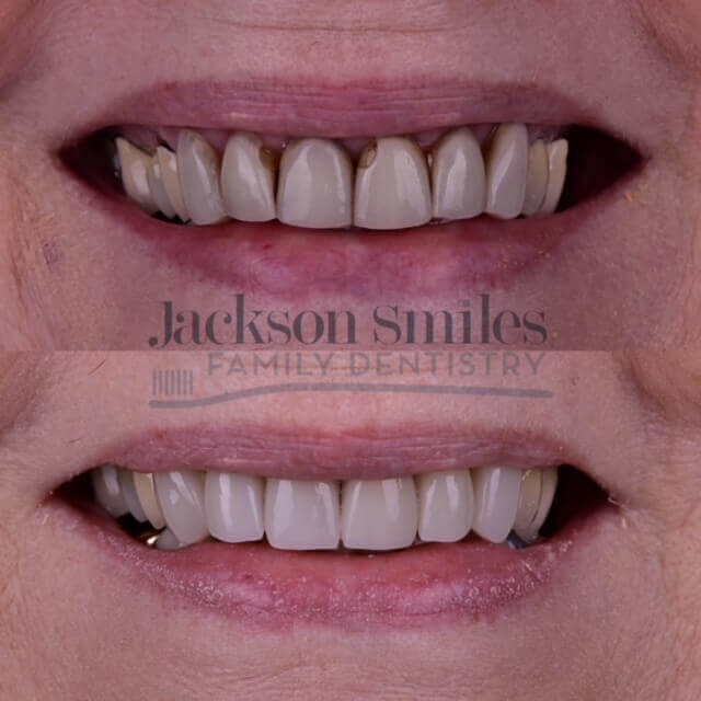Before and after photo of smile makeover