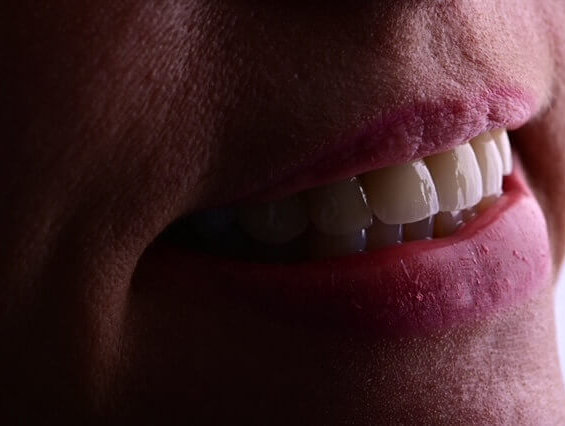 after photo of smile makeover